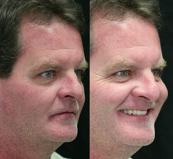 all-on-four-reduced-facial-height