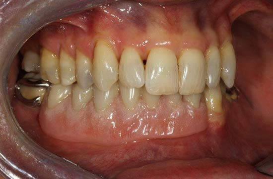 complex-dental-prosthetics-in-mouth