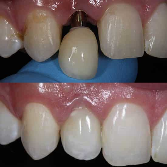 single-missing-tooth-dental-implant