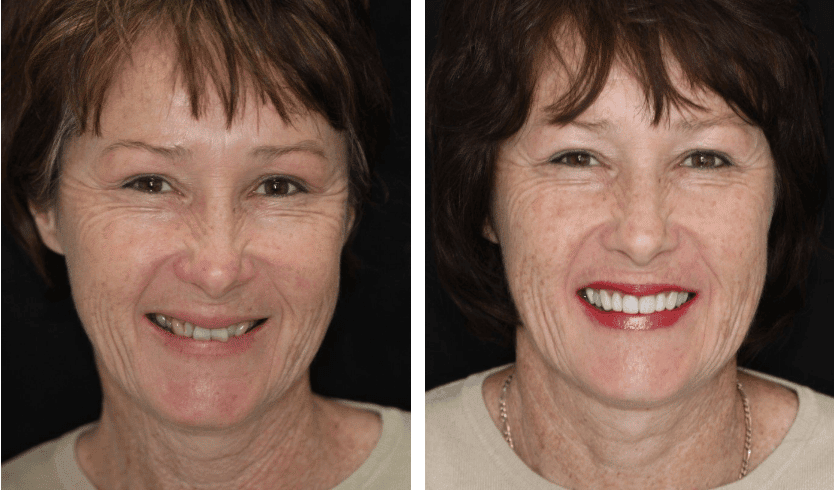 teeth white before-after